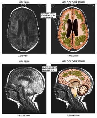 MRI Depicting Infant Brain Anatomy