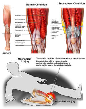 Traumatic Quadriceps Tear with Subsequent Atrophy and Weakness