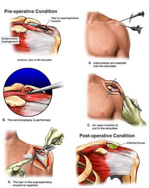 Left Shoulder Injuries and Surgical Repair with Post-operative Infections