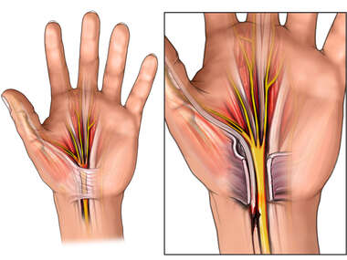 Left Hand Carpal Tunnel and Surgical Release