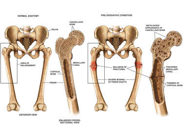 Vitamin D Resistant Rickets with Bilateral Femur Fractures