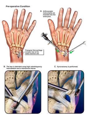 Arthroscopic Surgery of the Right Wrist with Debridement of the Triangular Fibrocartilage