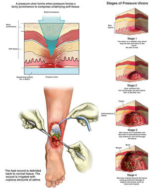 Formation of a Pressure Ulcer