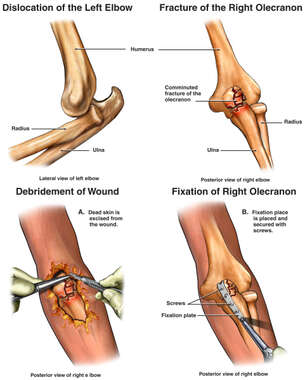Bilateral Elbow Injuries with Fixation of the Right Olecranon Fracture