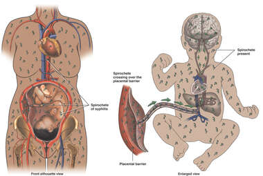 Spread of Syphilis During Pregnancy