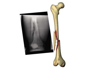 Fractured Femur Compared to Film