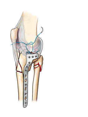 Tibial Plate Fixation