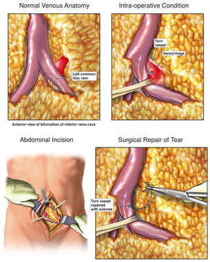 Intra-operative Vascular Injury with Surgical Repair