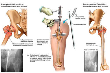 Hip Fracture with Surgical Repair