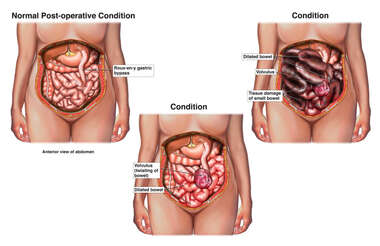 Failure to Diagnose Bowel Obstruction