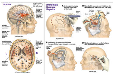 Brain Surgery - Traumatic Brain Injuries with Craniotomy and Drainage of Blood Clot