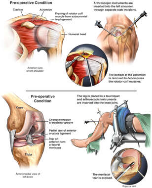 Shoulder and Knee Injuries with Surgical Repairs