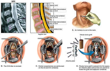 Cervical Disc Herniation with Surgical Fusion Procedure