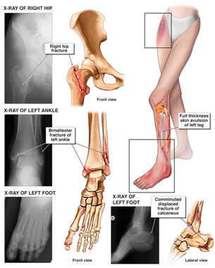 Female Lower Extremities and X-Ray Films of Fractures to the Right Hip, Left Ankle, and Foot