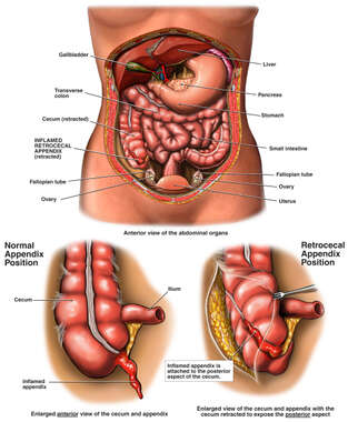Inflamed Retrocecal Appendix