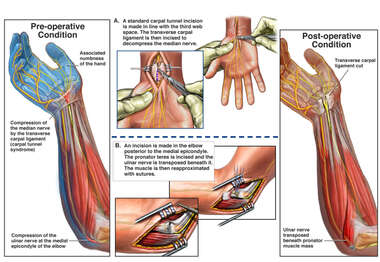 Nerve Compressions in the Right Arm with Surgical Repairs