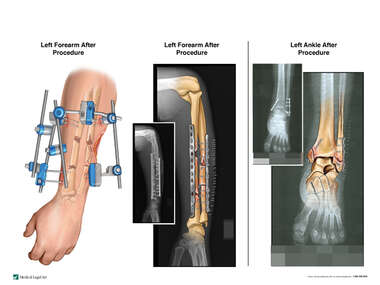 Left Forearm and Ankle Fractures with Surgical Fixation