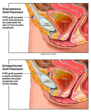 Subcutaneous vs Extraperitoneal Graft Placement