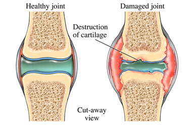 Synovial Joint Showing Arthritis