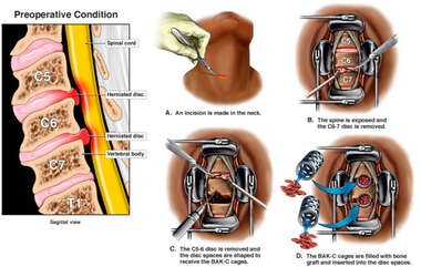 Cervical Spine Injuries with Double Level Discectomy and Fusion Procedure