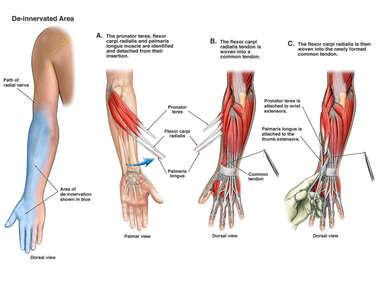Radial Nerve and Extensor Muscle Injury with Multiple Tendon Transfer