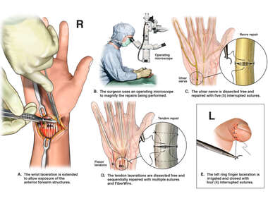 Microscopic Operative Repairs to Right Wrist and Left Finger