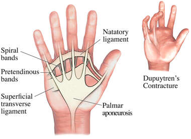 search adhesions of palmar aponeurosis dupuytren s contracture