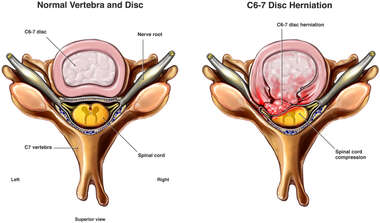 C6-7 Disc Herniation with Spinal Cord Compression