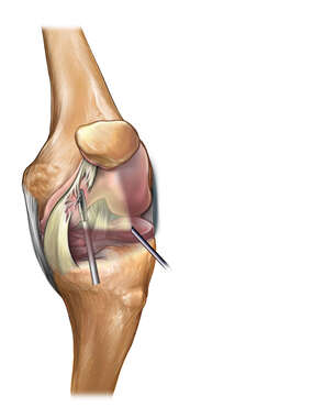 Medial Plica Section of the Knee