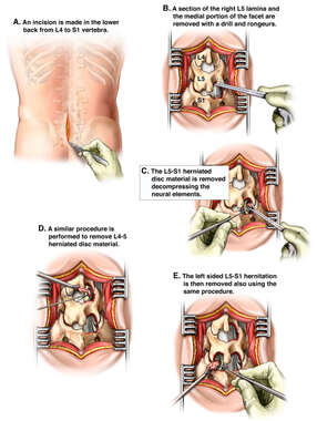 Double Level Lumbar Laminectomy and Discectomy Procedure