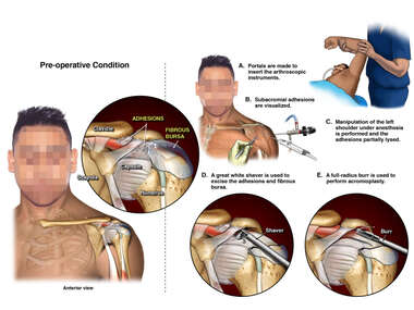 Arthroscopic Surgery of Left Shoulder