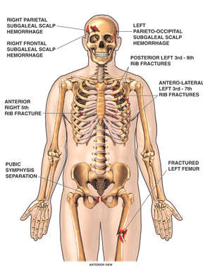 Skeletal Figure with Fractures to the Skull, Shoulder, Ribs, Pelvis and Thigh
