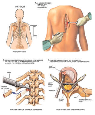 Back Surgery - T8-9 Thoracic Discectomy Procedure