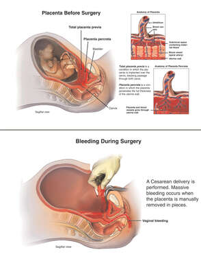 Placenta Previa and Placenta Percreta Before Surgery and Bleeding During Surgery