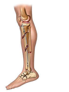 Post-op Tibia Fixation - lateral view