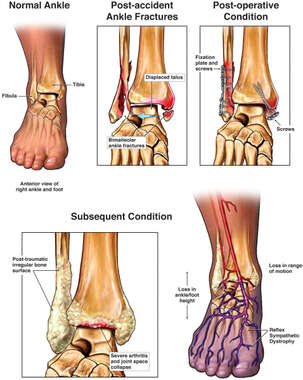 Progression of Right Ankle Injury