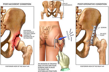 Post-accident Hip Fractures with Surgical Repairs