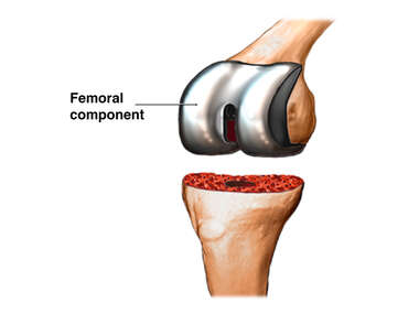 Total Knee Replacement: Step 3