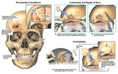 Traumatic Head Injuries with Craniotomy, Dural Repair, and Cranioplasty