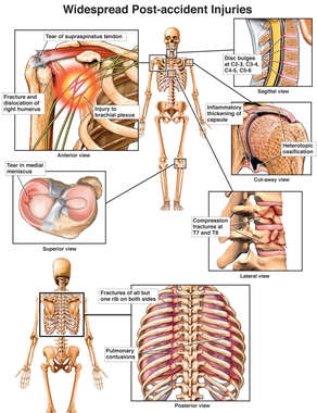 Front and Back Skeletal Figures with Injuries to the Shoulder, Cervical Spine, Thoracic Spine, Knee, Humerus, and Ribcage