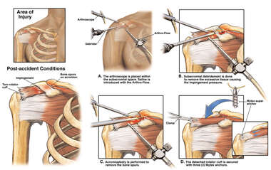 Post-accident Right Shoulder Rotator Cuff Injuries with Arthroscopic Repair