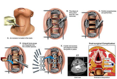 Multilevel Fusion Surgery