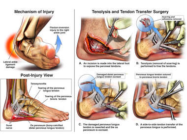 Traumatic Right Ankle Injury and Surgery