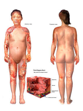 Widespread Burn Injuries