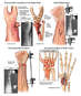 Progression of Right Wrist Condition
