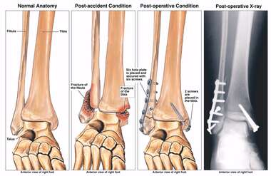 Bimalleolar Ankle Fracture with Subsequent Surgical Fixation