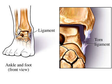 Ankle with Ligament Tear
