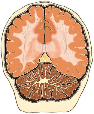 Brain, Oblique Cut-away View