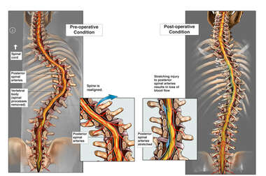 Vascular Disruption Following Spinal Realignment
