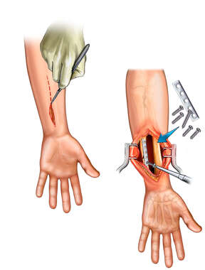 Surgical Repair of Ulnar Fracture